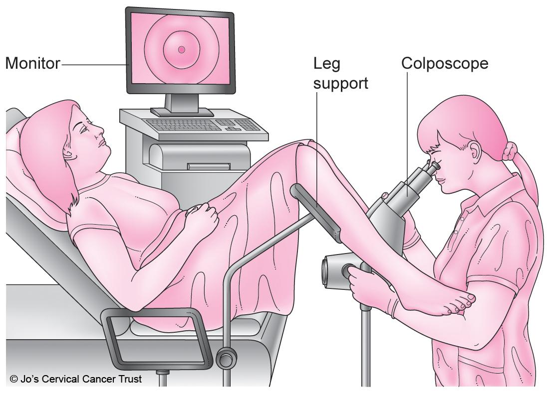 کولپوسکوپی - دکتر فرشته سربازی